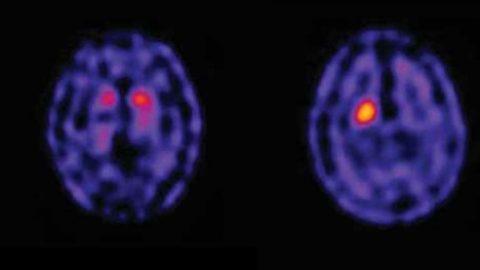 Cintilografia Cerebral com TRODAT: confira tudo o que você precisa saber