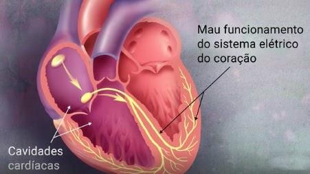 por que manter o check-up cardiológico em dia