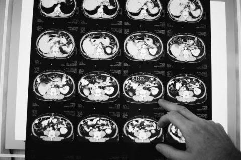 Cintilografia cerebral (trodat, tálio, diamox/dipiramidol)