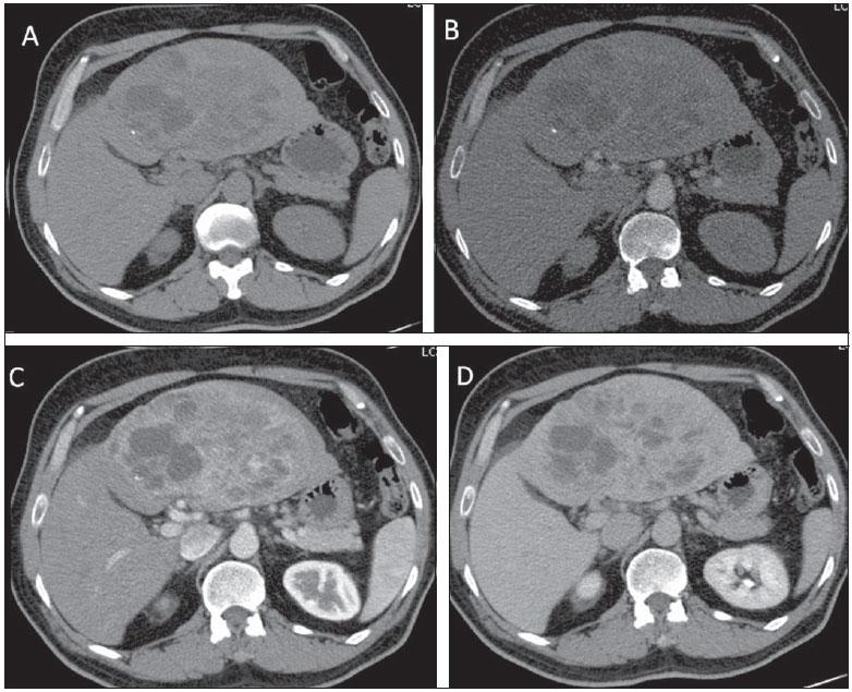 Cancer neuroendocrino de pulmon