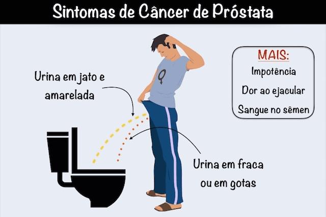 cancer de prostata em pessoas jovens)
