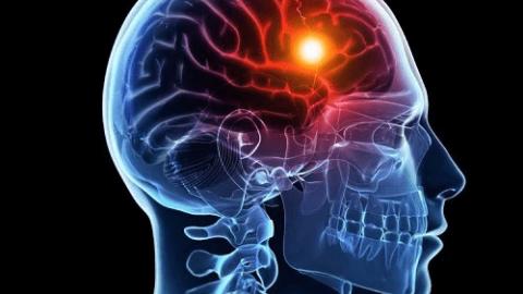 Exame Perfusão Cerebral: entenda o que é, para que serve e como é feito