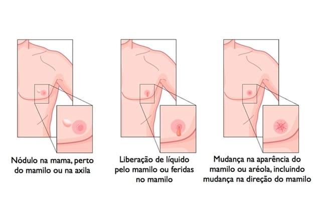 Sintomas de Câncer de Mama Masculino