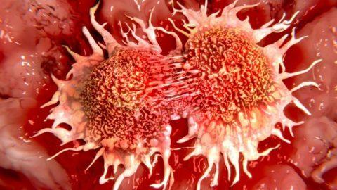 Cinco mudanças de hábito que podem reduzir o risco de câncer
