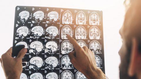 Ressonância Magnética: para que serve e quais as indicações?