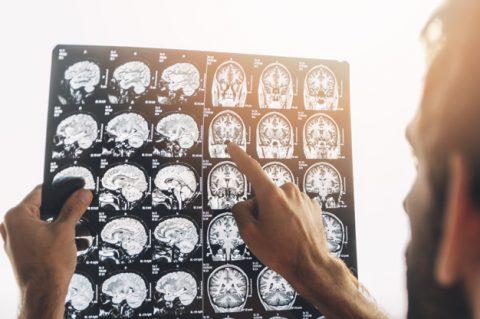 Para que serve o exame de ressonância magnética?