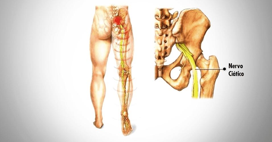 dor no quadril pode causar dormência na perna