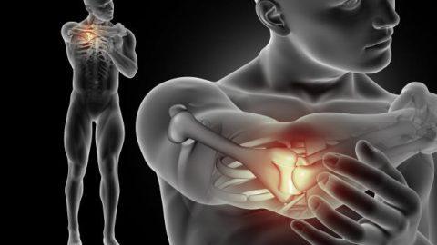 Tumor ósseo: tipos, sintomas e causas
