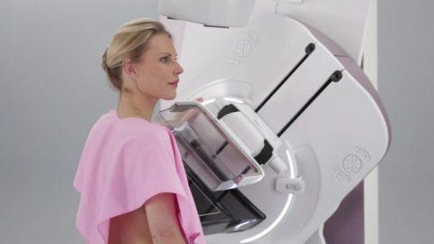 Mamografia com contraste: conheça os diferenciais do exame