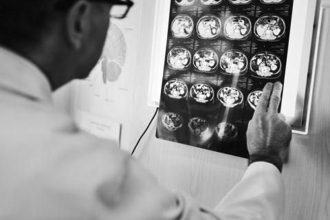 PET/CT com PSMA: exame fundamental no tratamento do câncer de próstata