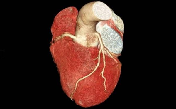 vasos sanguíneos dilatados pelo contraste