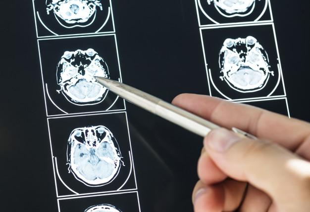 tomografia de cranio